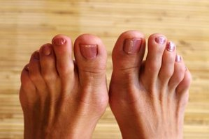 Homemade Remedy For Corns On Toes Ehow