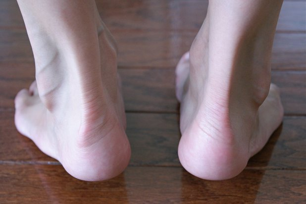 how to get rid of thick dry skin on feet