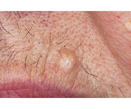 HPV Lip Wart Transmission - STDs - MedHelp