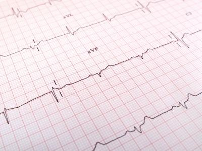 how to read blood pressure test results