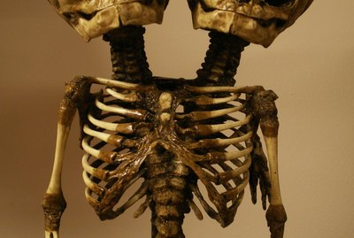 skeleton of conjoined twins
