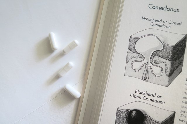 Image of comedones and pills