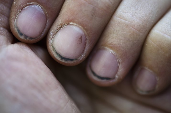 Close-up of hand with dirty fingernails